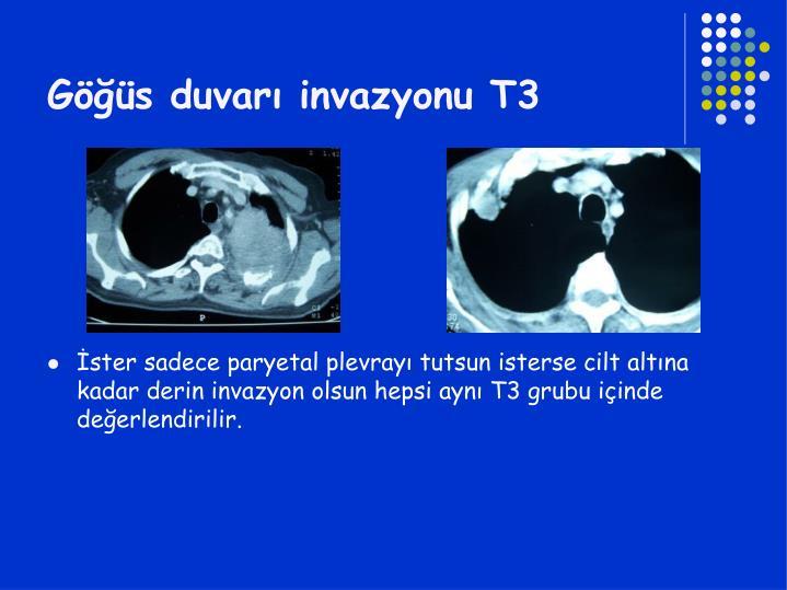 Göğüs duvarı invazyonu T3