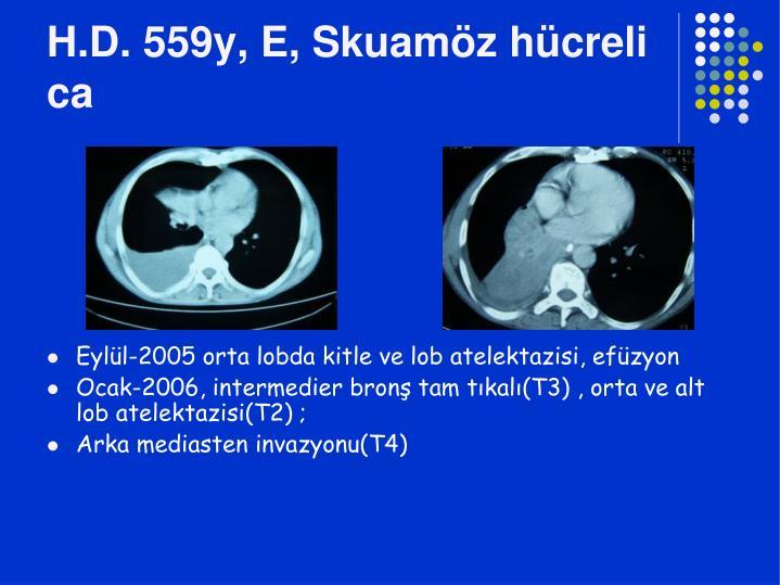 H.D. 559y, E, Skuamöz hücreli ca
