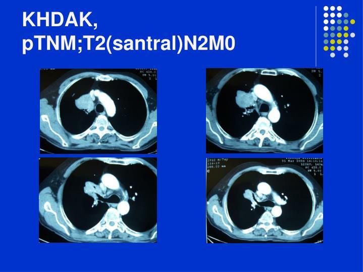 KHDAK, pTNM;T2(santral)N2M0