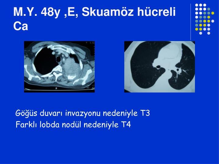 M.Y. 48y ,E, Skuamöz hücreli Ca