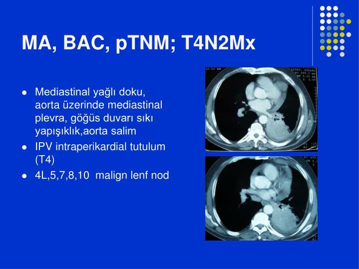 MA, BAC, pTNM; T4N2Mx