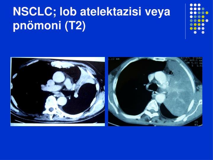 NSCLC; lob atelektazisi veya pnömoni (T2)
