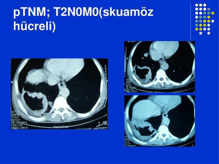 pTNM; T2N0M0(skuamöz hücreli)