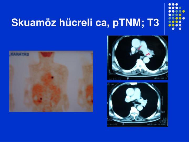 Skuamöz hücreli ca, pTNM; T3