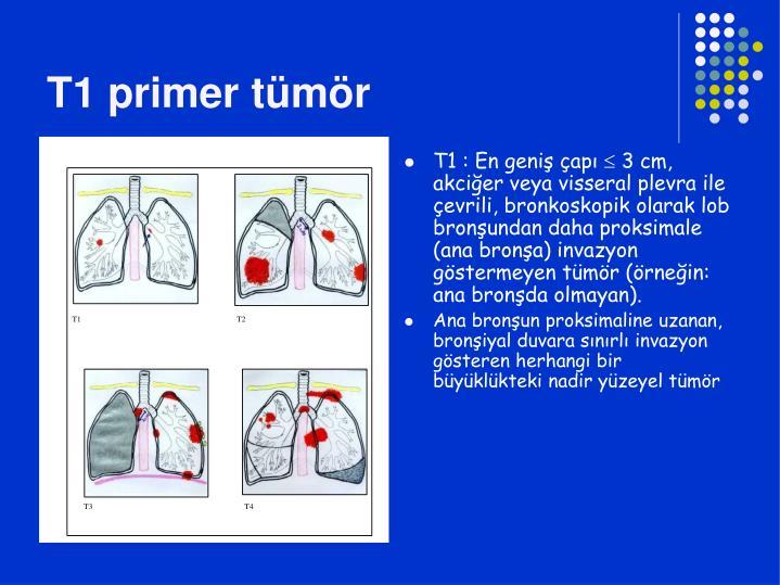 T1 primer tümör