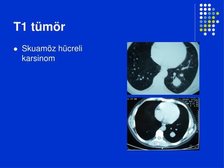 T1 tümör