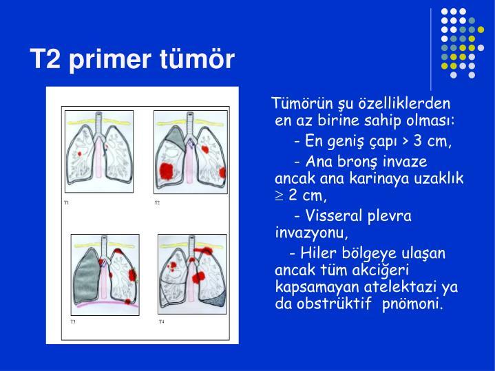 T2 primer tümör