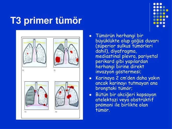 T3 primer tümör