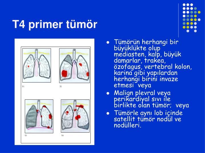 T4 primer tümör