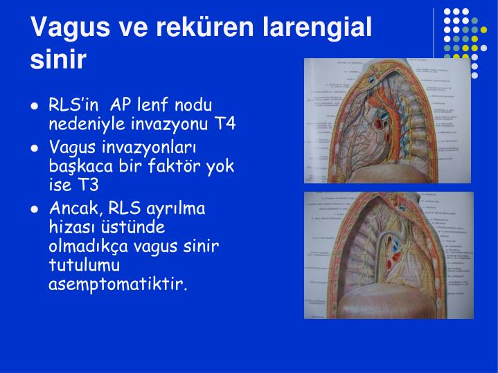 Vagus ve reküren larengial sinir
