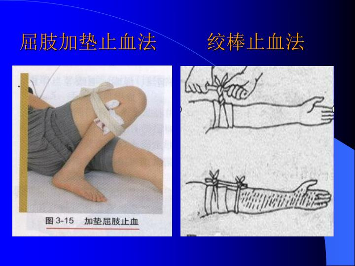 屈肢加垫止血法         绞棒止血法