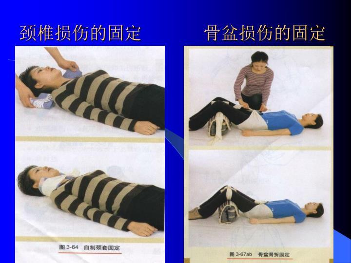 颈椎损伤的固定       骨盆损伤的固定