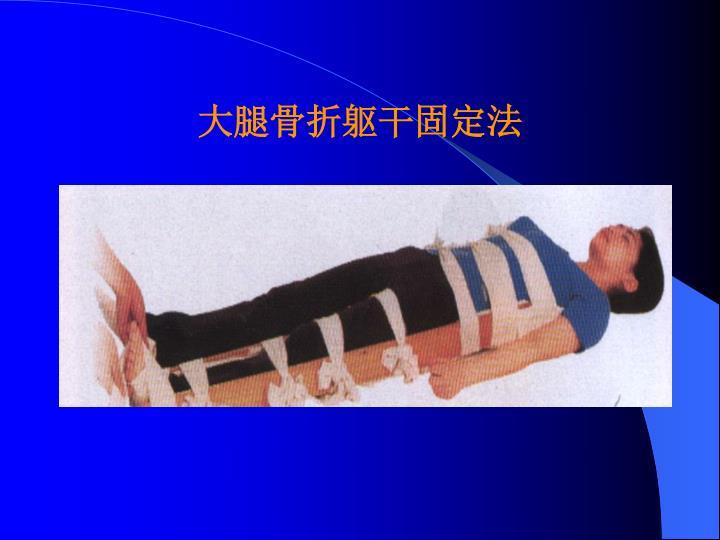 大腿骨折躯干固定法