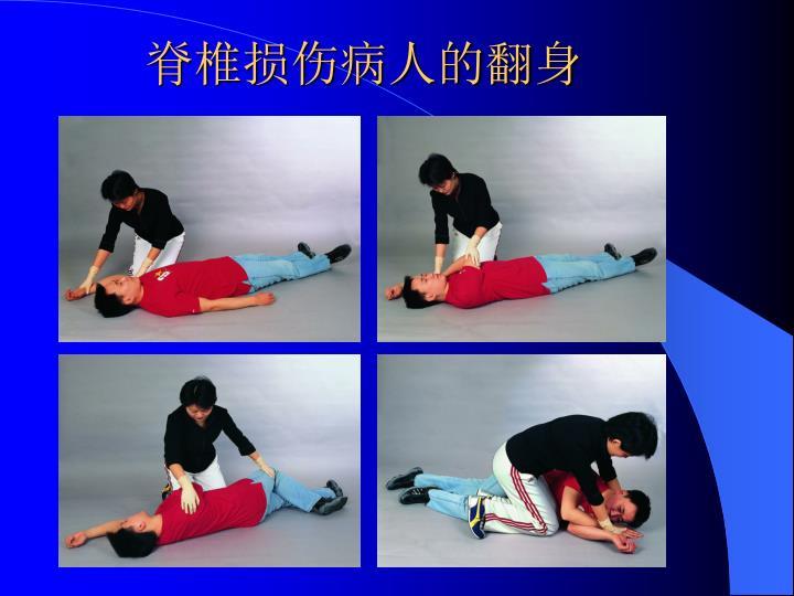 脊椎损伤病人的翻身