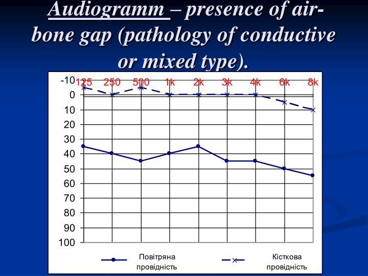 Audiogramm