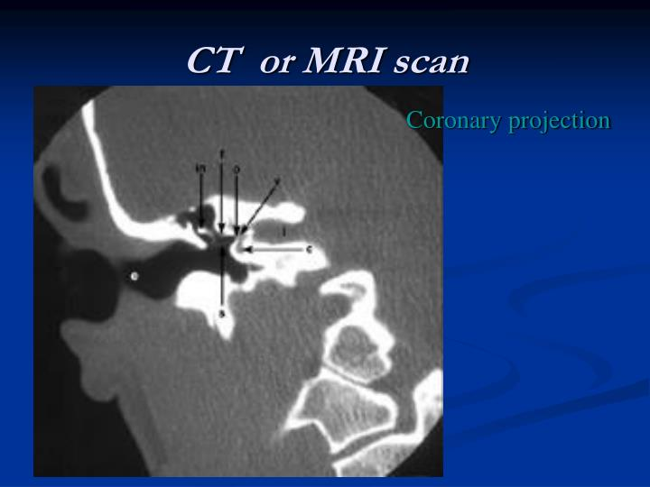 CT  or MRI scan