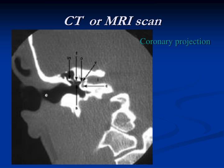 CT  or MRI scan
