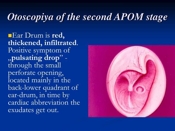 Otoscopiya of the second APOM stage