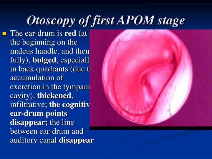 Otoscopy of first APOM stage