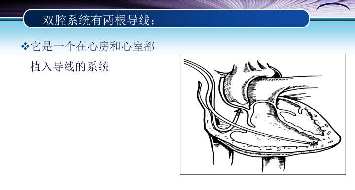 双腔系统有两根导线: