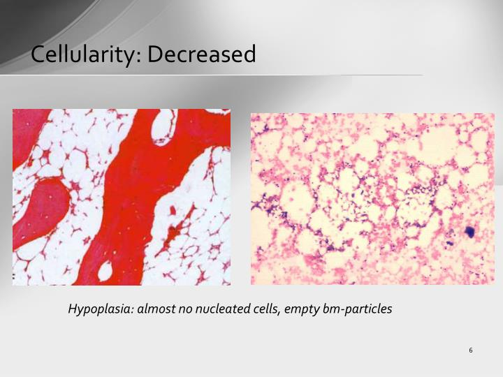 Cellularity: Decreased