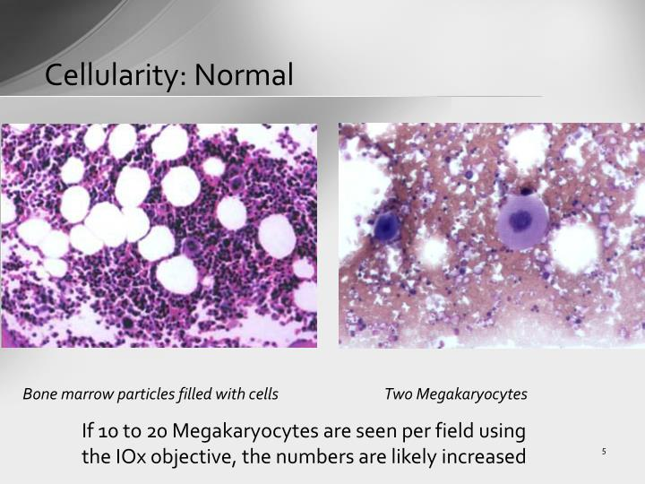 Cellularity: Normal