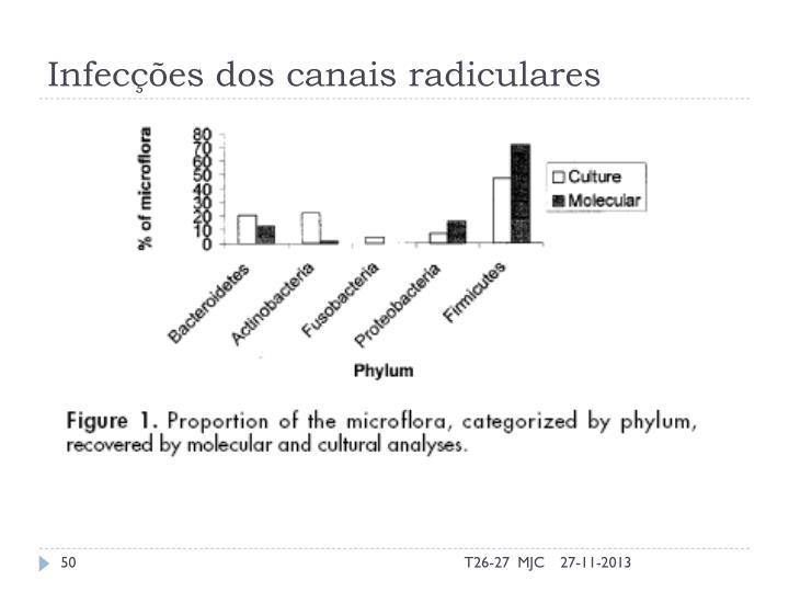 Infecções dos canais radiculares