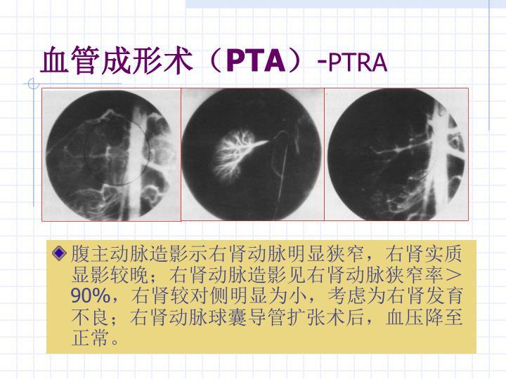 血管成形术(