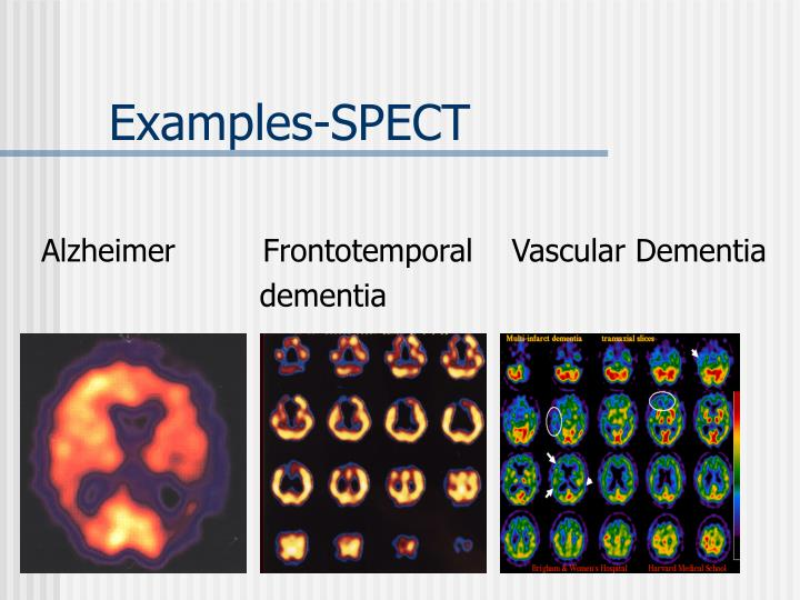 Examples-SPECT