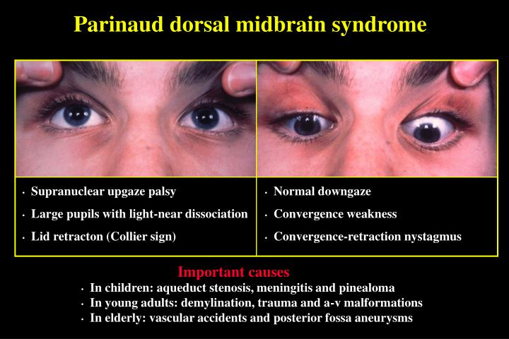 Parinaud dorsal midbrain syndrome