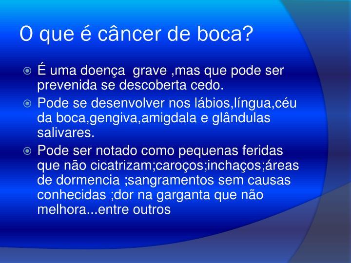 O que é câncer de boca?