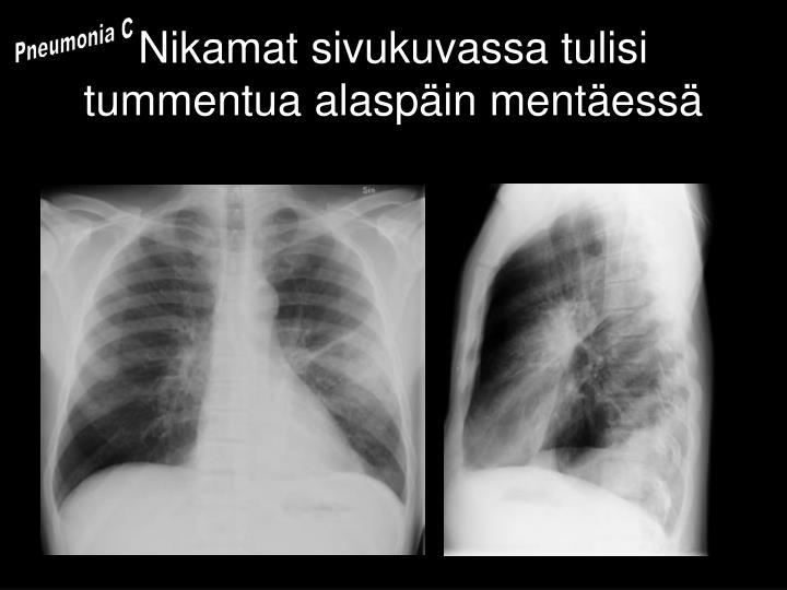 Pneumonia C