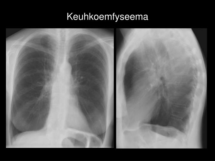 Keuhkoemfyseema