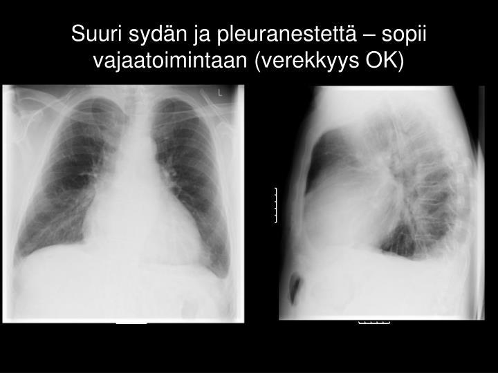 Suuri sydän ja pleuranestettä – sopii vajaatoimintaan (verekkyys OK)