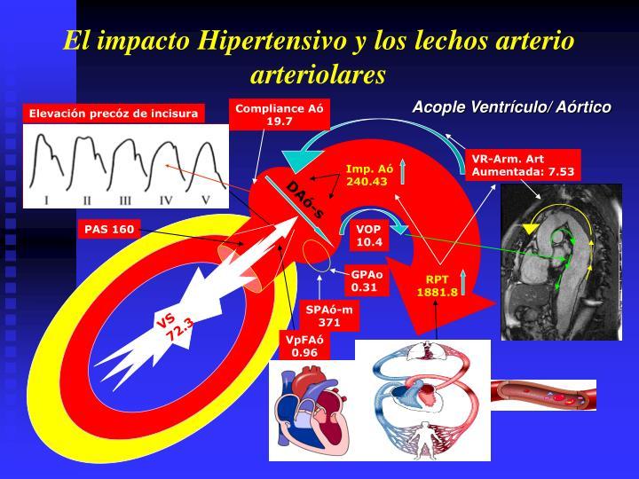Acople Ventrículo/ Aórtico