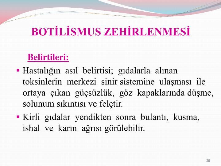 BOTİLİSMUS ZEHİRLENMESİ