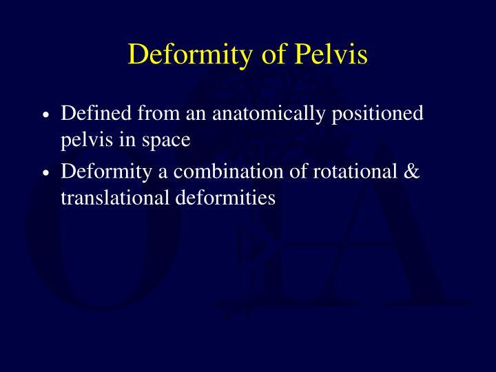 Deformity of Pelvis
