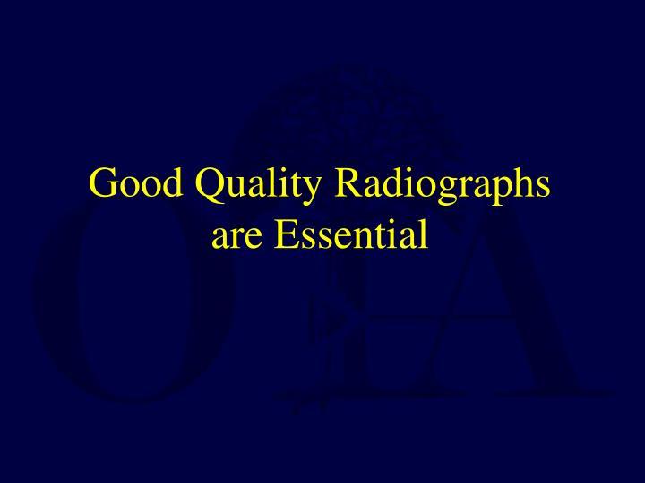 Good Quality Radiographs