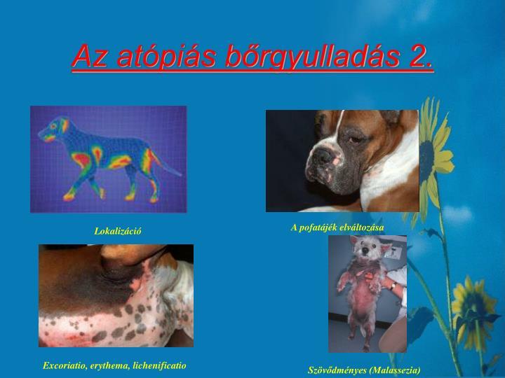 Az atópiás bőrgyulladás 2.