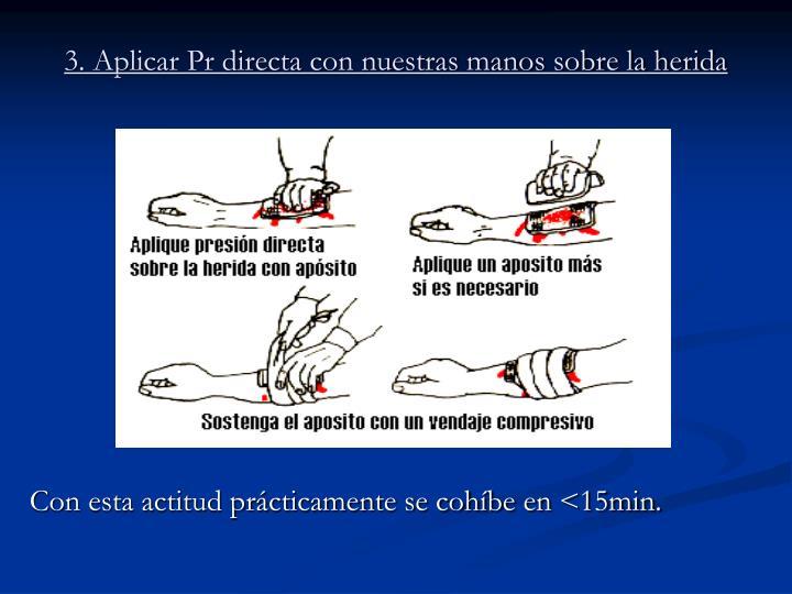 3. Aplicar Pr directa con nuestras manos sobre la herida