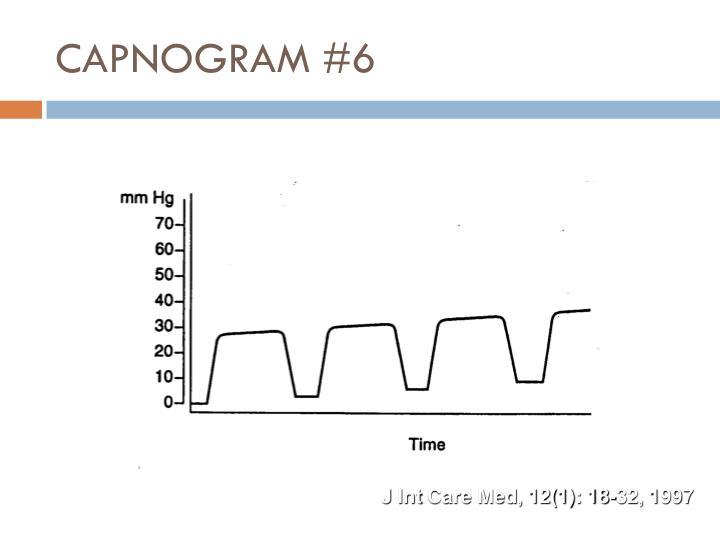 CAPNOGRAM #6