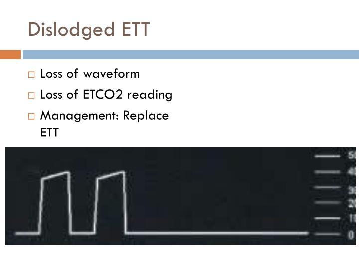 Dislodged ETT