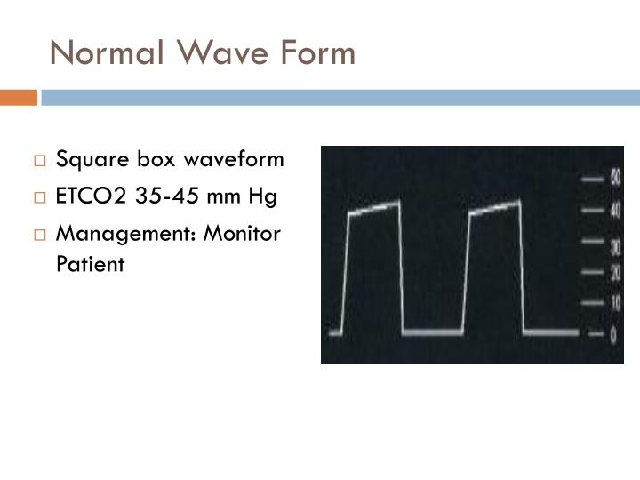 Normal Wave Form