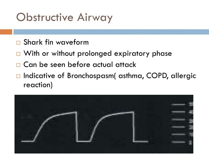 Obstructive Airway