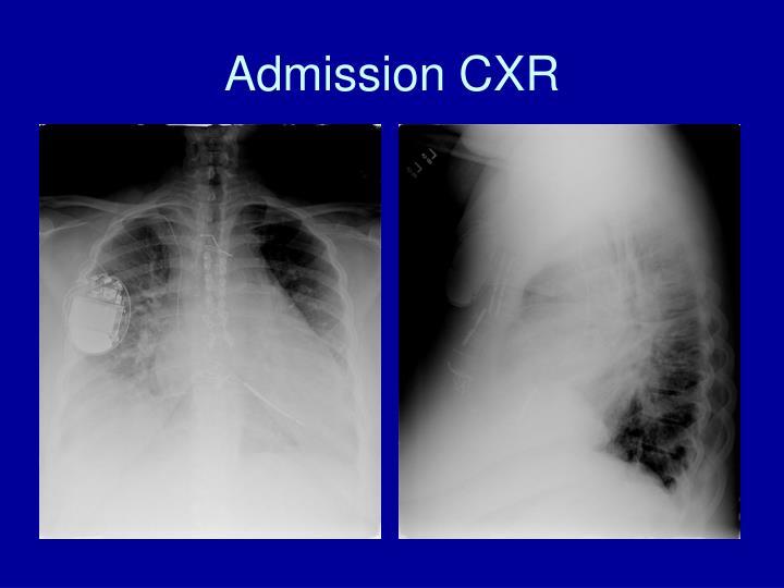 Admission CXR