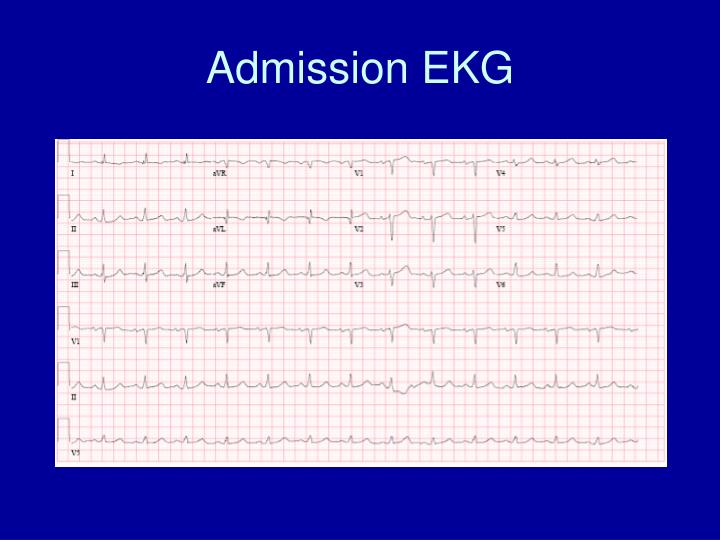 Admission EKG