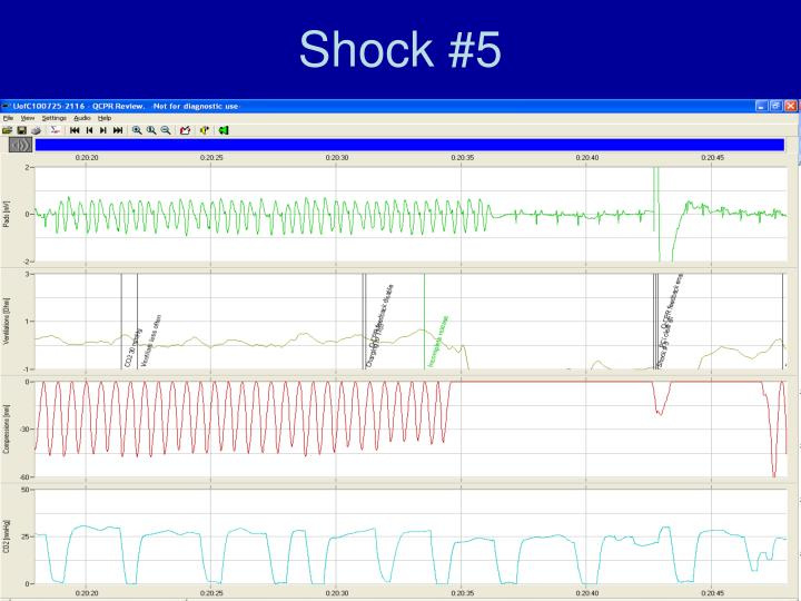 Shock #5