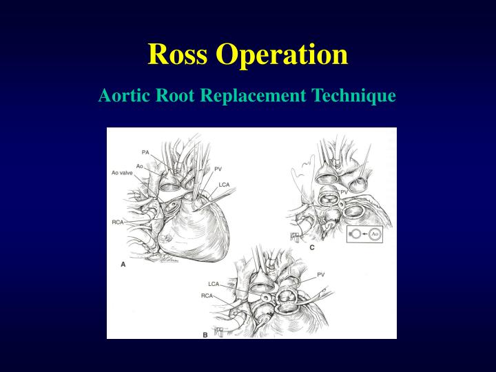 Ross Operation