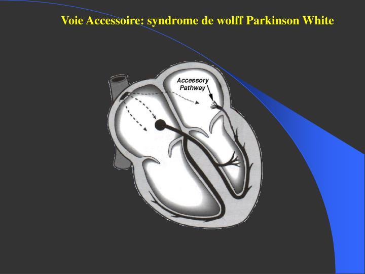 Voie Accessoire: syndrome de wolff Parkinson White