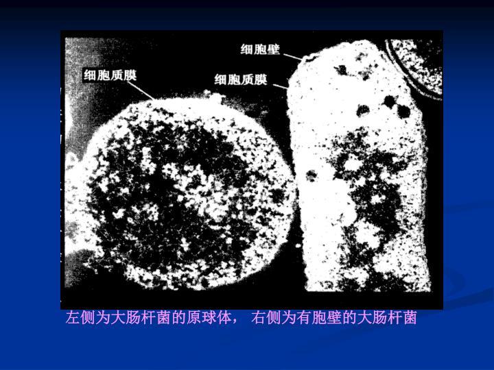 左侧为大肠杆菌的原球体,